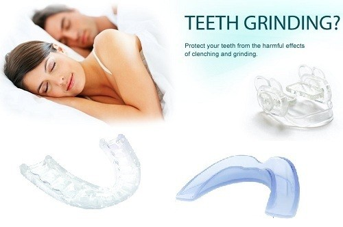 best mouth guard for teeth grinding