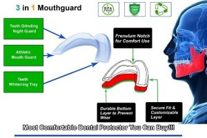 Dental Duty Professional Best Mouth Guard for Teeth Grinding