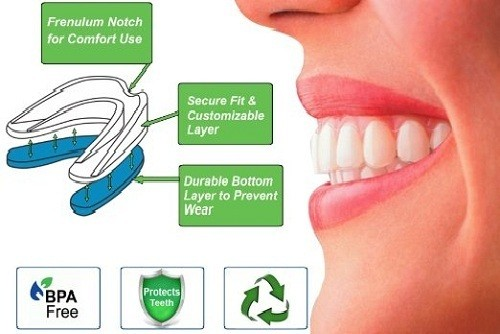 Silent Angel Professional Mouth Guard